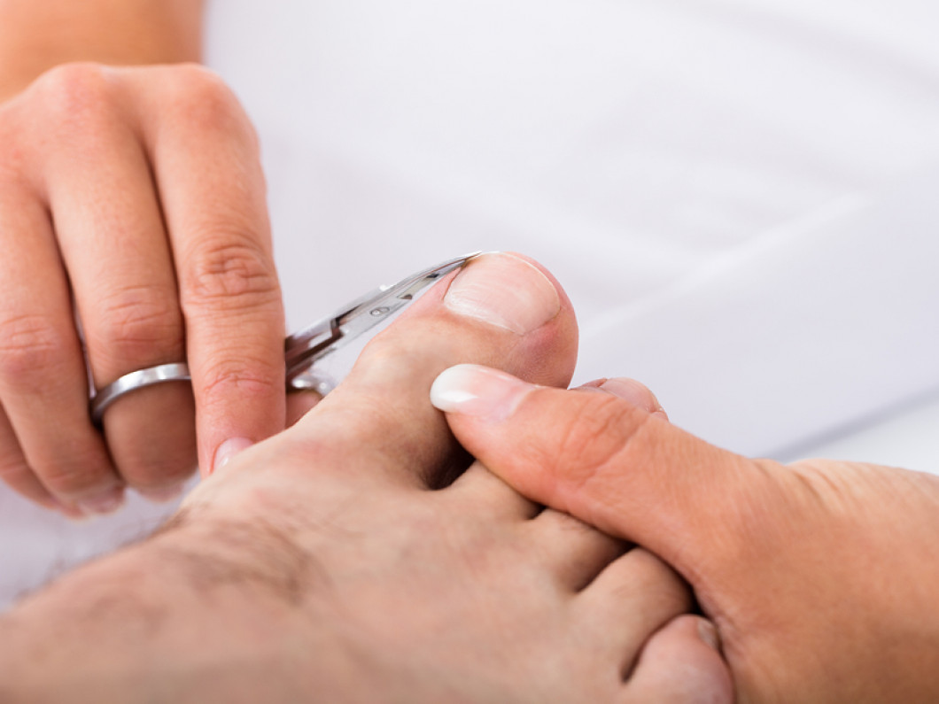 Experiencing Pain From an Ingrown Toenail? We Can Help.