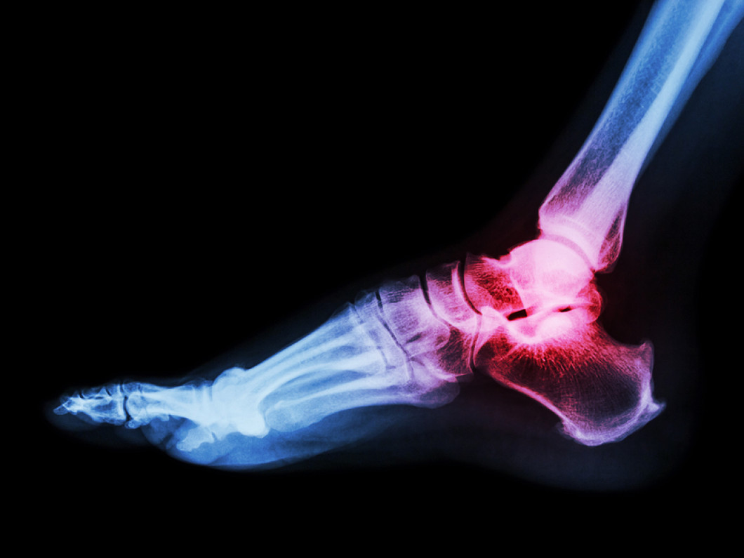 Are You Suffering From Tarsal Tunnel Syndrome?